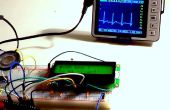 Électrocardiographe & cardiofréquence-mètre