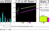Arduino Pulse capteur Cardio graphique