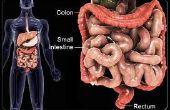 DCI : La Cure de Crohn et la colite ulcéreuse